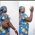Woman Who Underwent Surgery To Remove Huge Tumour, Shows Off Her Arm. Photos