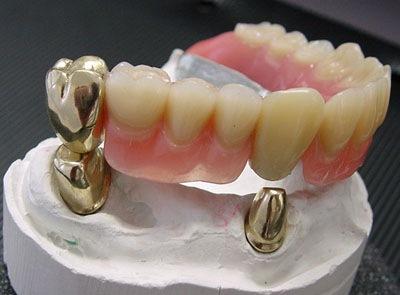 Gigi Tiruan Atau Gigi Palsu Apakah Mulai Menjadi Pilihan Anda