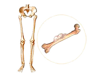 penyebab kanker tulang, gejala kanker tulang, cara mengobati kanker tulang