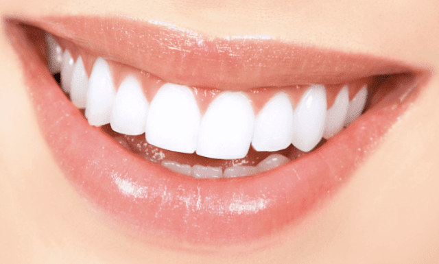 تعرفي على الطرق الطبيعية للحصول أسنان بيضاء ذات جمال وأناقة
