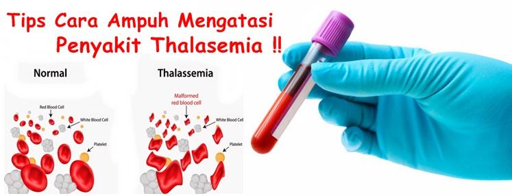 Obat Tradisional Tuntaskan Thalasemia