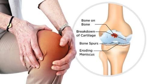 Terapi lutut setelah operasi