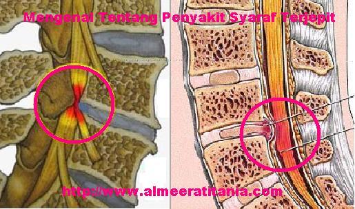 Penyebab terjepitnya saraf tulang belakang dan Gejala saraf tulang belakang terjepit