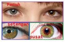 Jenis Heterochromia Iridium