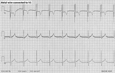 Pedi cardiology: Quiz, EKG: What is the rhythm? Junctional