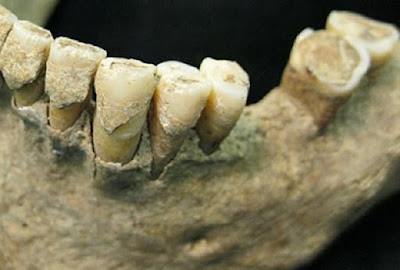 Anthropologists reconstruct mitogenomes from prehistoric dental calculus