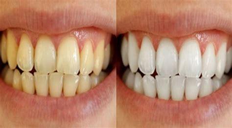 Cara Menghilangkan Gigi Kuning Paling Cepat Dengan Ramuan Herbal