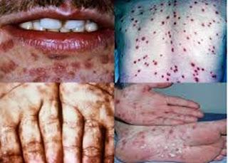 antibiotik-khusus-penderita-sipilis-di-apotik-paling-ampuh
