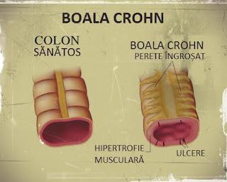 pareri tratamente noi boala crohn forumuri medicina