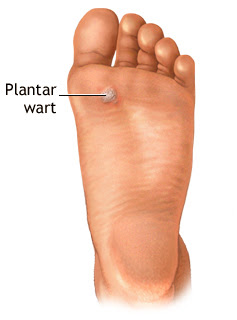 Simple ways of plantars wart home remedy