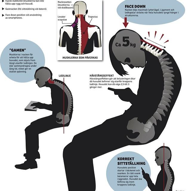 Huvudvärk som flyttar sig