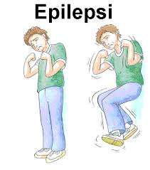 Asuhan keperawatan pada klien epilepsi
