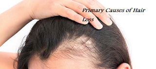 Primary Causes of Hair Loss