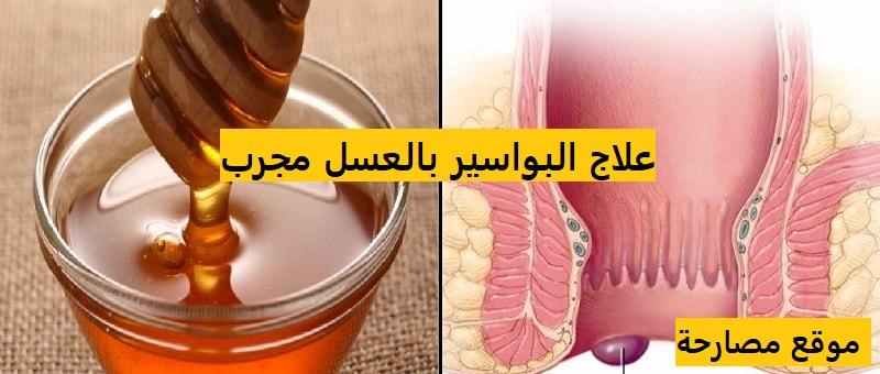 علاج البواسير بالعسل مجرب
