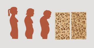 В период климакса содержание кальция в костях резко уменьшается