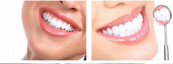 Tips Gigi Putih Sehat Cara Rumahan Tips Gigi Putih Berseri