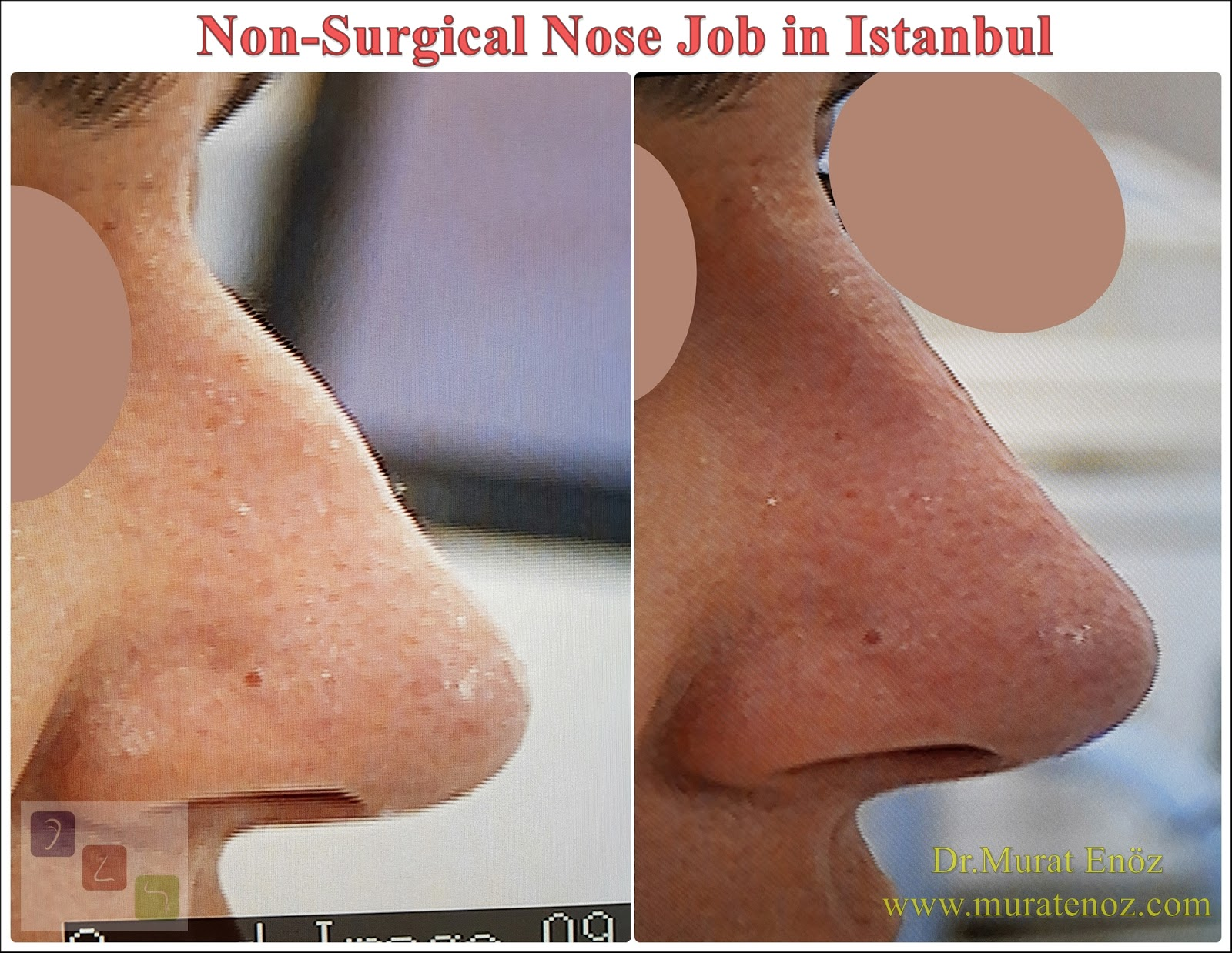 Cost of Non-Surgical Nose Job in Istanbul
