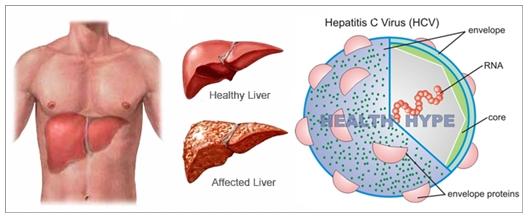 Pengobatan Herbal Hepatitis C Terbukti Ampuh