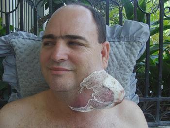 HOMBRE CON TUMOR CANCEROSO A CONSECUENCIA DEL SOL ...