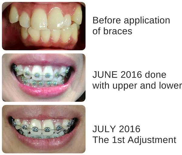 Ap24 Whitening Fluoride Toothpaste Review A Beauty Bella