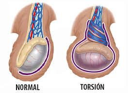 Mi viejo maletin: Torsión testicular