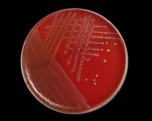ENTEROCOCCUS: Morphology, Lab Diagnosis and Control