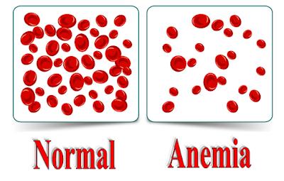 Cara Mengatasi Anemia Ringan Pada Ibu Hamil Secara Alami