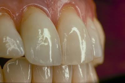 Trồng răng implant - giải pháp tối ưu khôi phục răng số 2