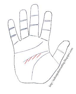 ADHD palmistry