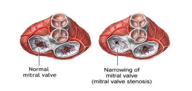 Kalp Mitral Kapak Darlığı (Stenozu)