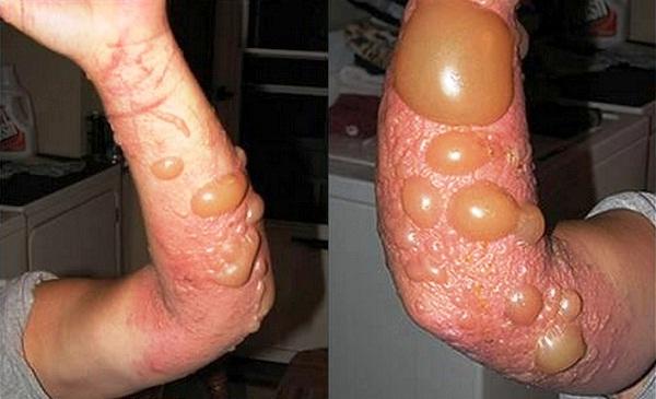 Gigitan Semut Paling Berbahaya Di Dunia