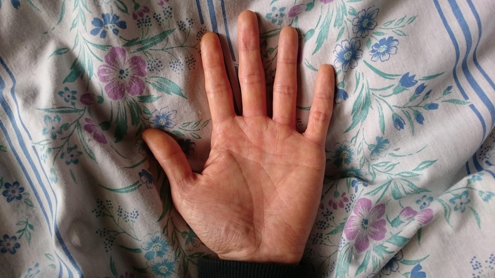 結城永人のシドニー線の左手の手相