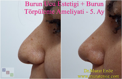 nose tip surgery, nose operation, nose tip reshaping, tip rhinoplasty, tip plasty, nose tip reduction, nose, tip refinement, tip rhinoplasty cost, nasal tip surgery, nasal tip refinement, nose tip surgery before and after, lift nose tip naturally, nose tip lift, nose tip reshaping cost, nose tip reshaping without surgery, bulbous, nose tip reshaping, nose tip reshaping before and after, reshaping nose tip, nasal tip reshaping, cost of nose tip reshaping, nose tip surgery, nasal tip surgery, nose tip surgery before and after, nose surgery, tip of the nose surgery, tip nose surgery, plastic surgery nose tip, bulbous nose tip surgery, nose, tip plastic surgery, nose surgery tip only, plastic surgery tip of nose, tip nose surgery before and after, tip surgery nose, nasal tip surgery before after, round nose tip surgery, surgery for bulbous nose tip, rhinoplasty tip surgery, bulbous tip surgery, nose surgery recovery tips, droopy nose tip surgery, nose tip surgery recovery, nose bridge reduction, nasal hump removal, nasal hump reduction, revision tip plasty