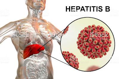 Cara Menyembuhkan Hepatitis B Dengan Qnc Jelly Gamat