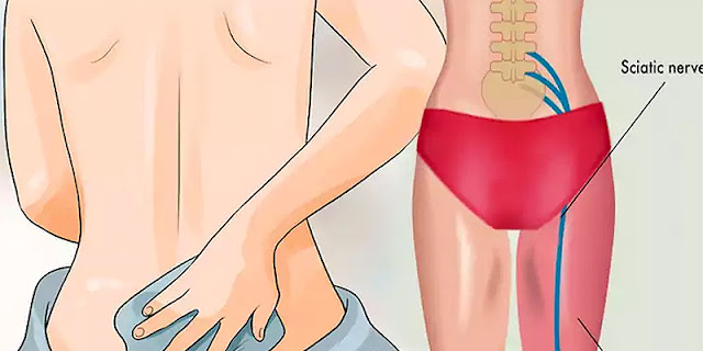 5 Natural Ways To Reduce Sciatic Pain!