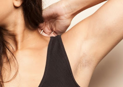 Tips Cara Menghilangkan Bulu Halus di Ketiak Permanen Mencerahkan Ketiak Laser Hair Removal