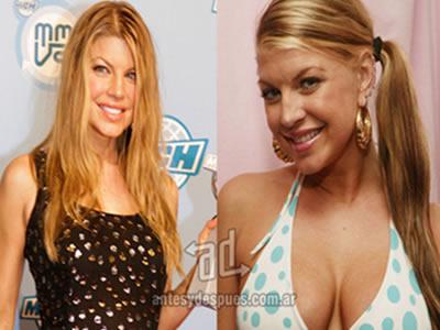 Fergie aumentó su busto