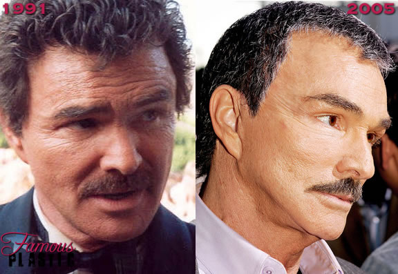 Burt Reynolds Plastic Surgery Before And After Facelift
