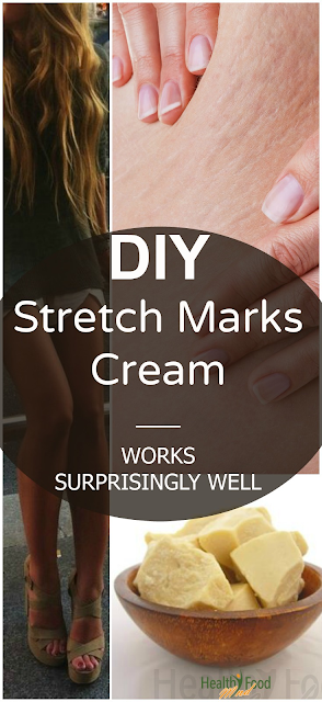 Effective DIY Stretch Mark Cream!