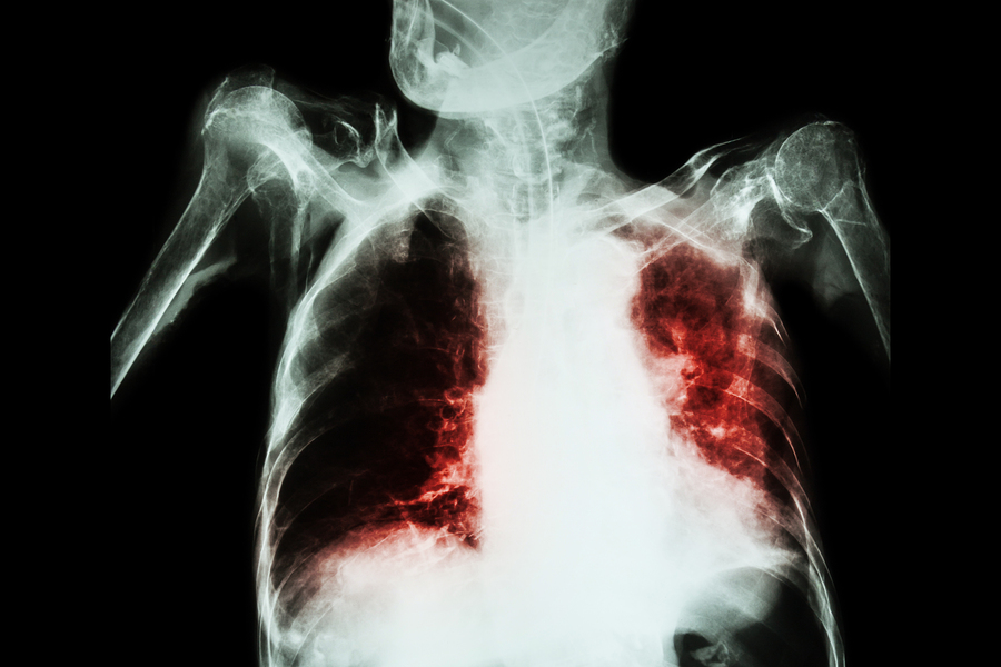 [Image: bigstock-Pulmonary-Tuberculosis-With-Ac-105632375.jpg]