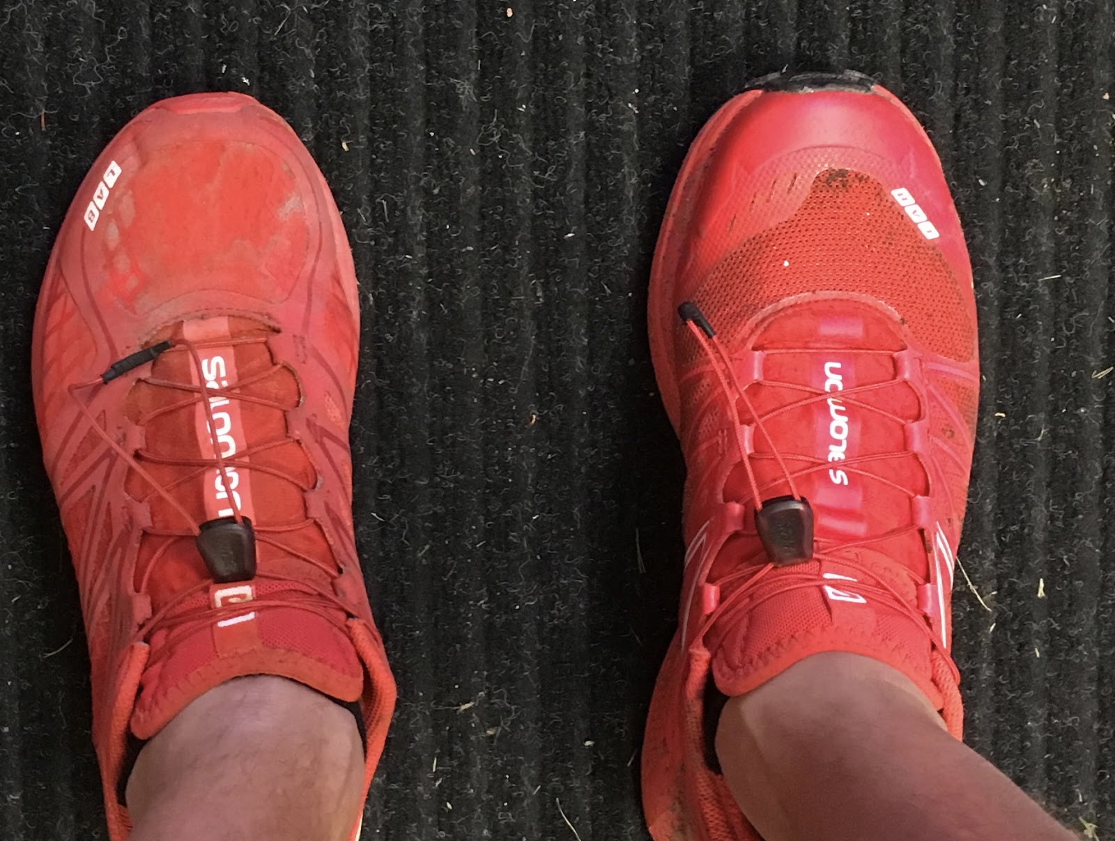 How Roomy Should The Toe Box Be In Shoes