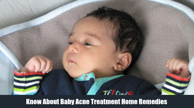 Know About Baby Acne Treatment Home Remedies
