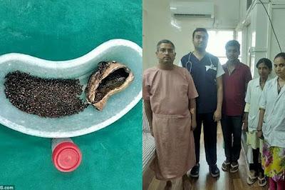 Hii..Pria Asal India ini Mempunyai 4100 Batu Empedu di Tubuhnya! Euw, Kayak Gini Rasanya