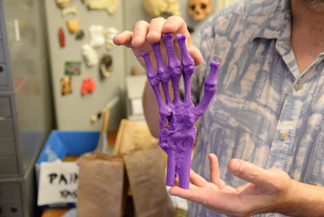 Lab 3-D scans human skeletal remains dating back to the American Civil War