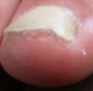 Verhornte Zehennägel, was soll ich tun? Die Lösung ist das Fußnagel Spray von Jenn Cosmetic