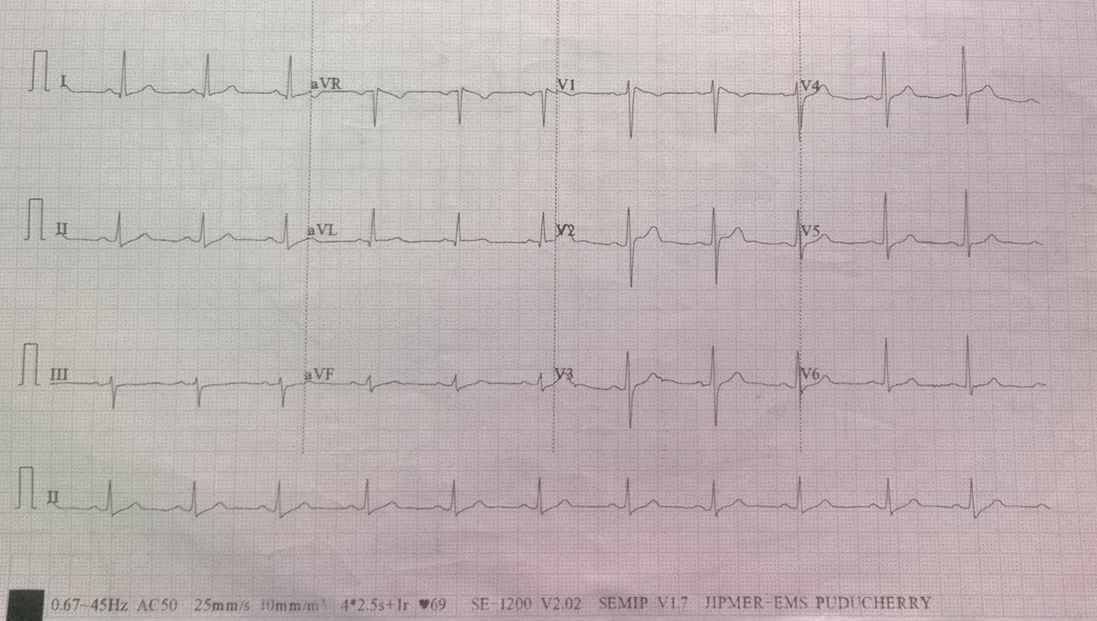 Cardiology window: Brugada ECG