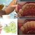 Get Rid Of Bad Breath and Remove Harmful Bacteria In Your Mouth Using This Oil Pulling Procedure