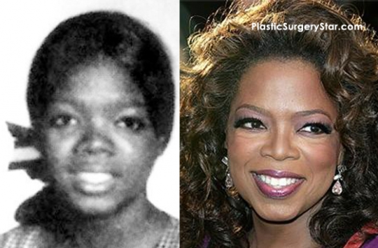 FASHION EXTRA: Oprah Winfrey Plastic Surgery For Nose Job,Trick that