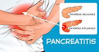 https://steviaven.blogspot.com/2017/12/inflamacion-del-pancreas-sintomas-debes-conocer.html