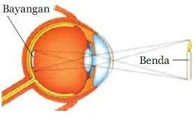 Cara Mengatasi Rabun pada Mata